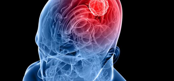 True Relief for Brain Tumors